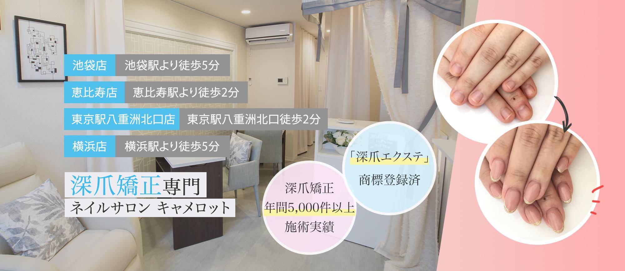 東京 家袋・恵比寿の深爪矯正専門ネイルサロン キャメロット