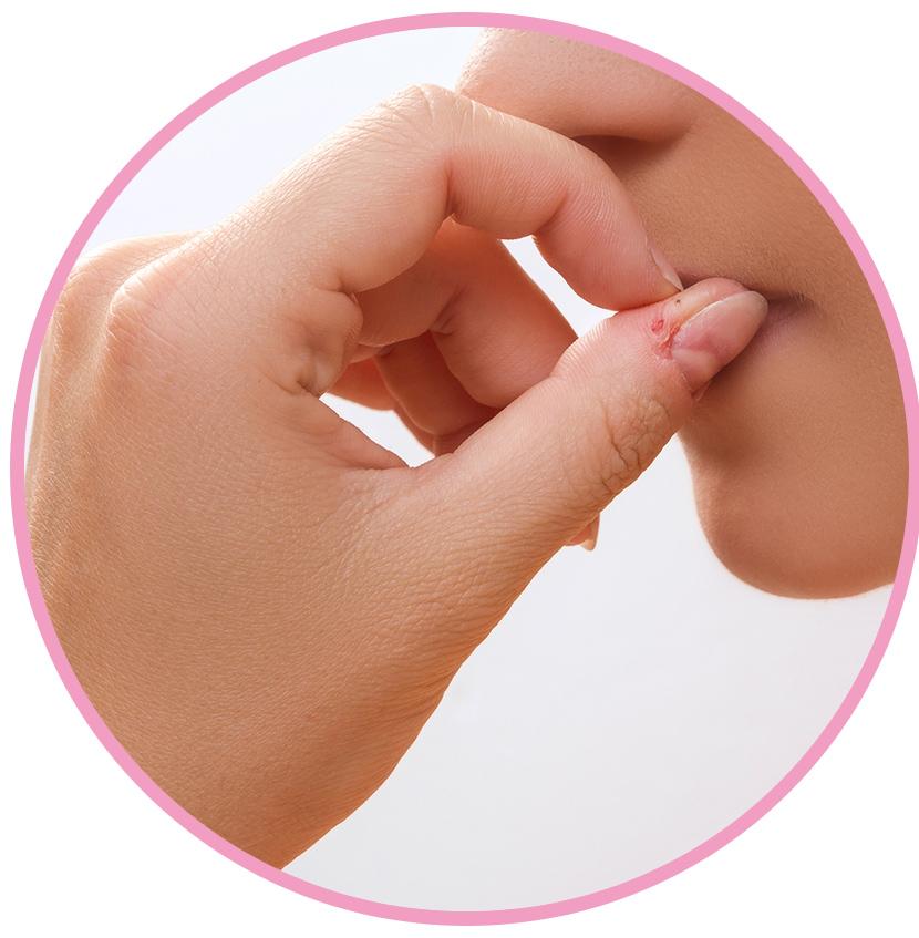 深爪・噛爪の悩み
