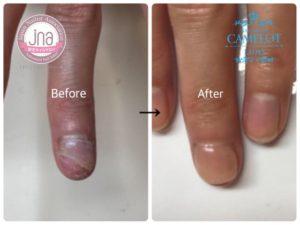 アトピー爪・でこぼこ爪の見た目改善