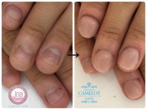 でこぼこ変形爪の見た目改善は、深爪矯正専門ネイルサロンにまかせたほうがよい3つの理由