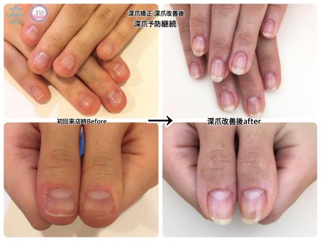深爪矯正ネイルサロンキャメロットの施術はこんな方にオススメ5つのポイント【前編】