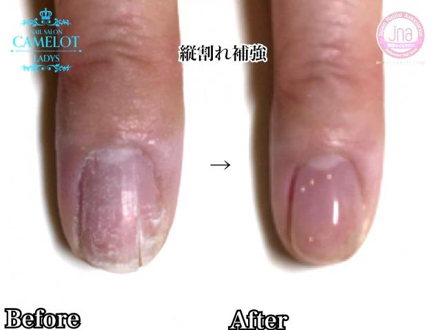 爪の縦割れ 横割れ補強もネイルサロンで直せる3つのポイント