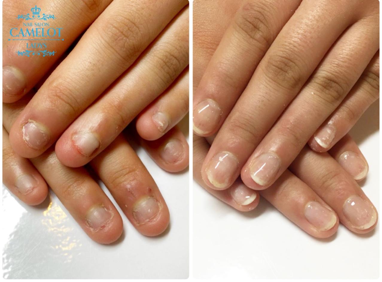 深爪矯正卒業後 深爪予防ネイルケア