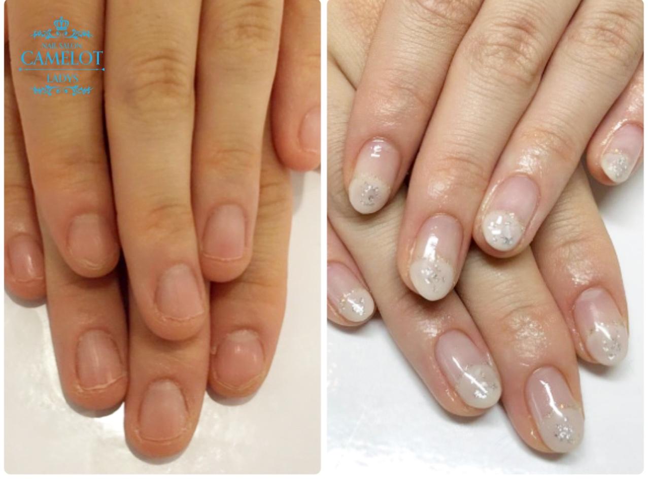 深爪矯正卒業後 深爪予防ケア+自爪を削らないパラジェル