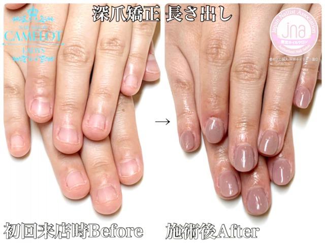 深爪矯正の人工爪で長い期間ネイルを楽しむ3つのポイント