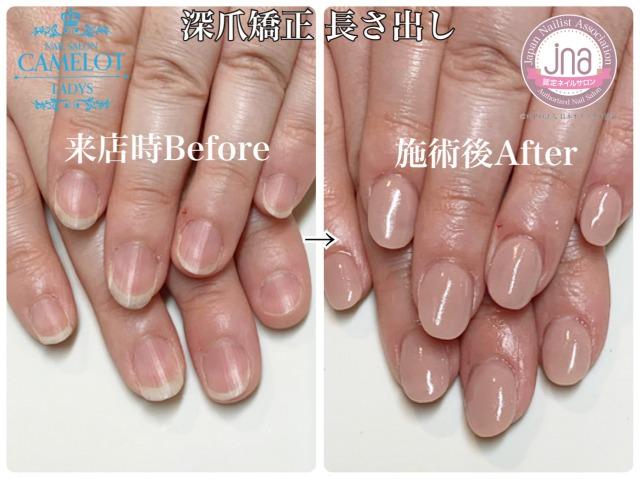 初めての深爪矯正の人工爪に早く慣れるポイント